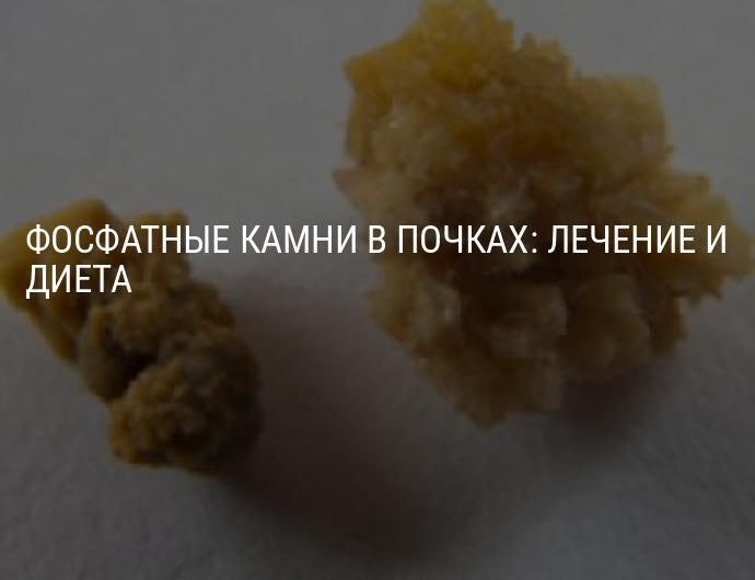 Диета при фосфатно-кальциевых камнях