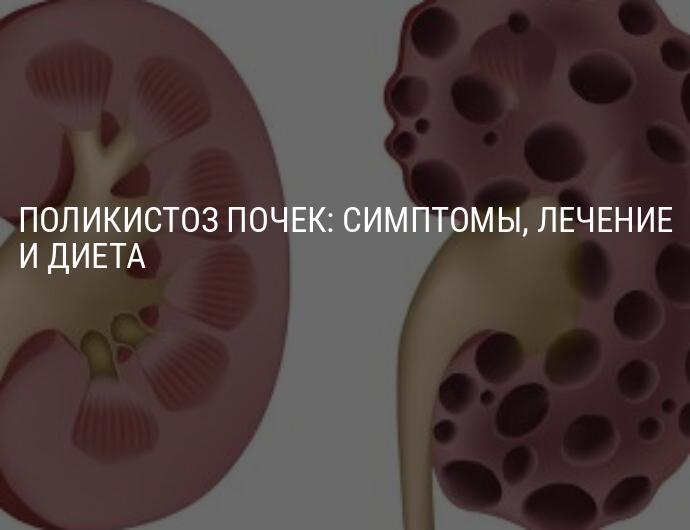 Поликистоз почек на УЗИ (лекция на Диагностере)