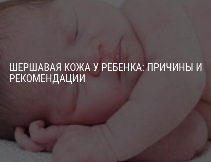 Сыпь и сухость кожи у ребенка