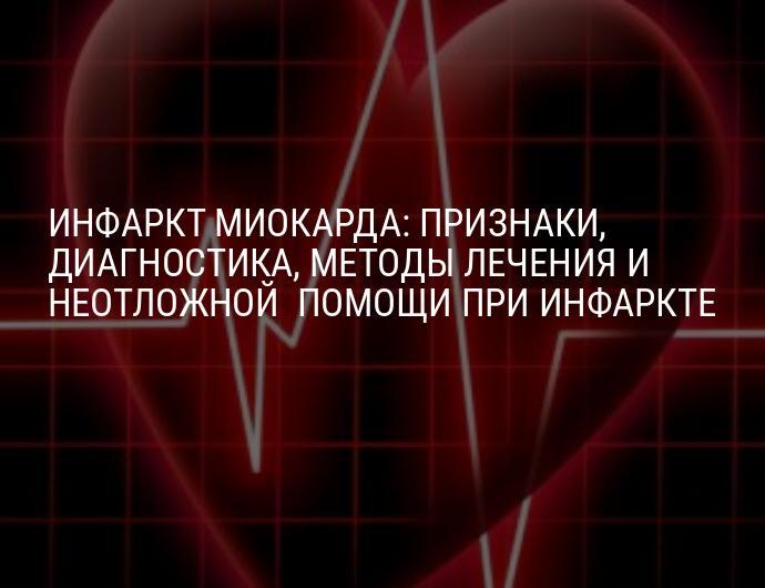 Острый инфаркт миокарда неотложная помощь