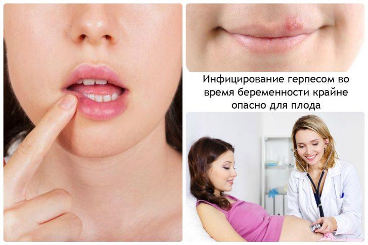 Инфицирование-герпесом-во-время-беременности-крайне-опасно-для-плода