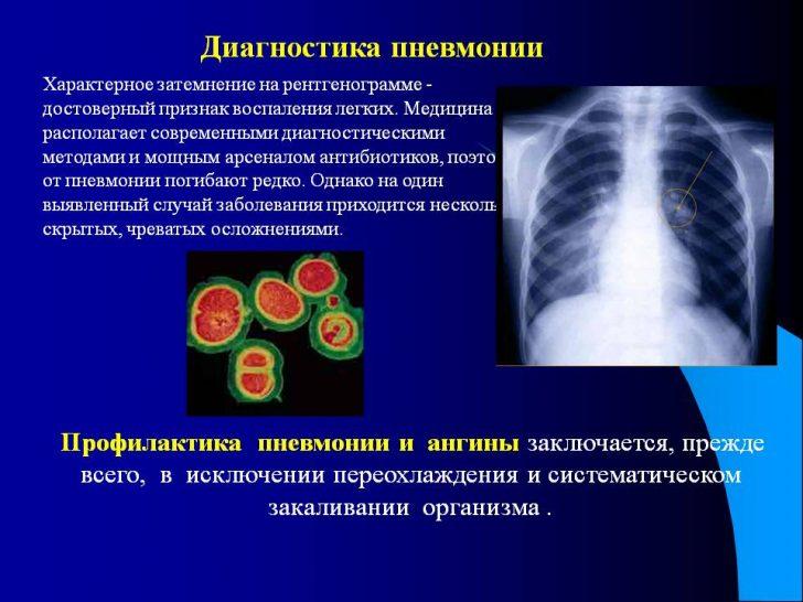 0008-008-Diagnostika-pnevmonii