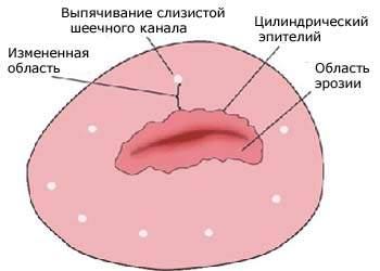 315200-eroziya-sheyki-matki
