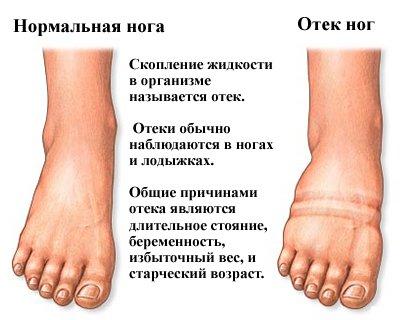 36430-klinika-dlya-lecheniya-tromboflebita-v-voronezhe