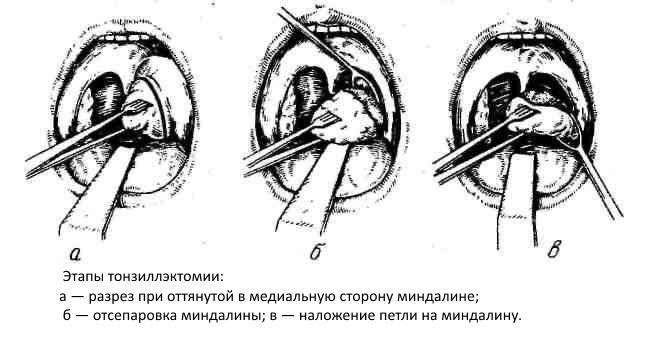etapi-tonzillektomii