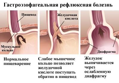 gastroezofagealnaya-reflyuksnaya-bolezn-izzhoga
