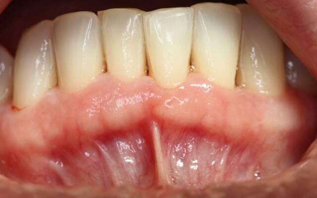 medikamentoznoe-lechenie-parodontoza1