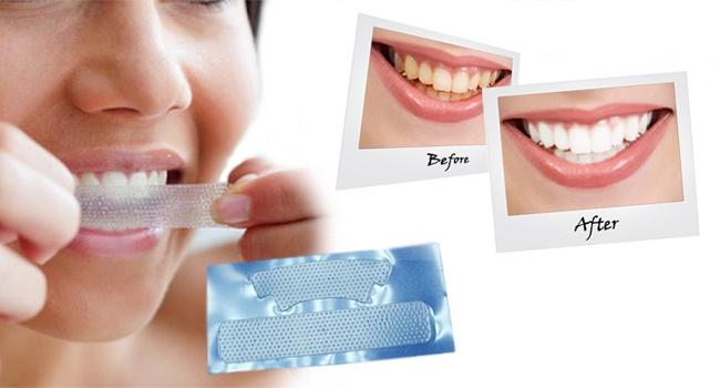 poloski-dlya-otbelivaniya-zubov2