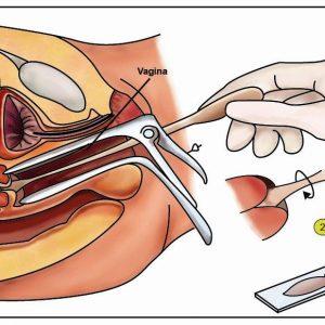 rahimkanseri1