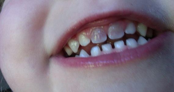 Тетрациклиновые зубы у детей