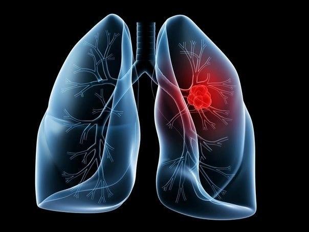 Рак легких. Симптомы, признаки и лечение рака легких.