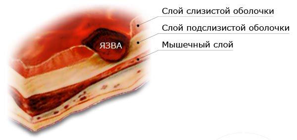 595207-statistika-yazvennoy-bolezni-zheludka-v-kazahstane