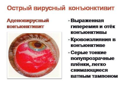adenovirusniy-konyuktivit_4