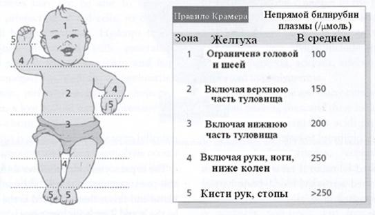 geltushka-u-novorogdennyh-norma-3