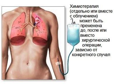 himioterapiya