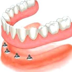 Покрывной зубной протез - показания и противопоказания к установке покрывных зубных протезов
