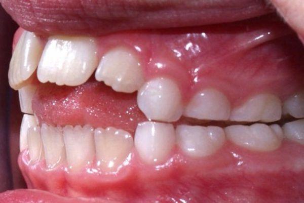 thumb-sucking-teeth