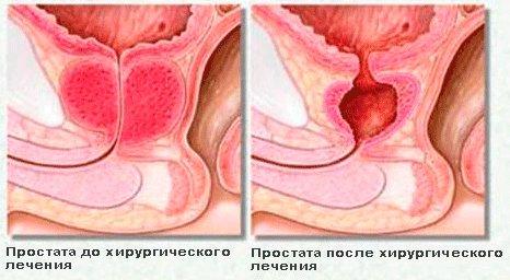 23821716-nebakterialnyy-hronicheskiy-prostatit