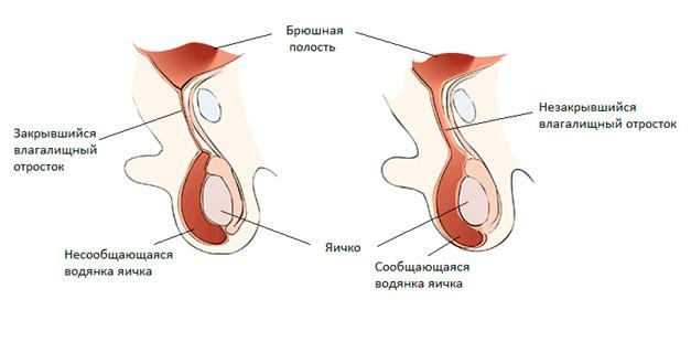 Простатит водянка яичка мазь от простатита и геморроя