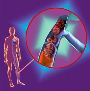 Восходящий тромбофлебит поверхностных вен нижних конечностей: что это такое, симптомы и лечение