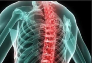 Анкилозирующий спондилоартрит или болезнь Бехтерева опасная патология позвоночника и суставов