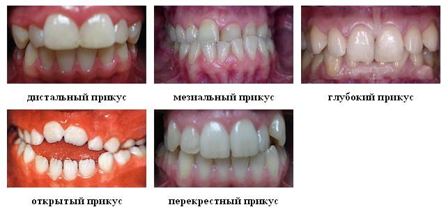 Pravilnyiy-prikus-zubov