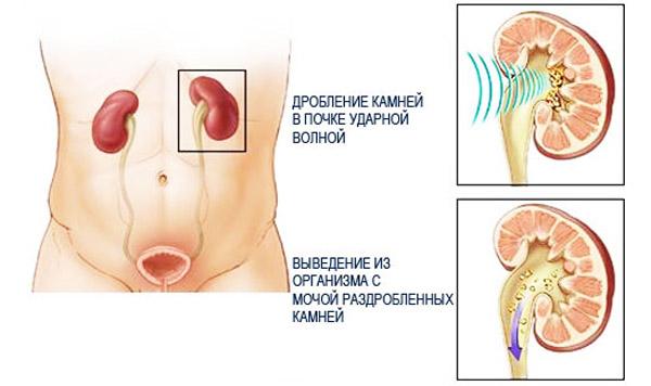 distantsionnaya-litotripsiya-v-lechenii-mochekamennoy-bolezni-monografiya-m-k-tereschenko-79306-large