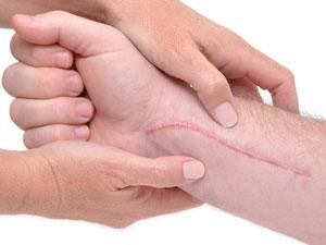 Методы лечения и удаления келоидных рубцов