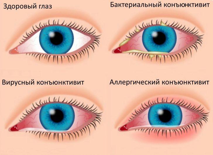 Виды-конъюнктивита