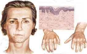 Диффузная склеродермия