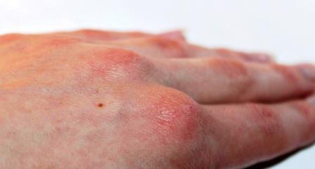 Симптомы цыпок на руках