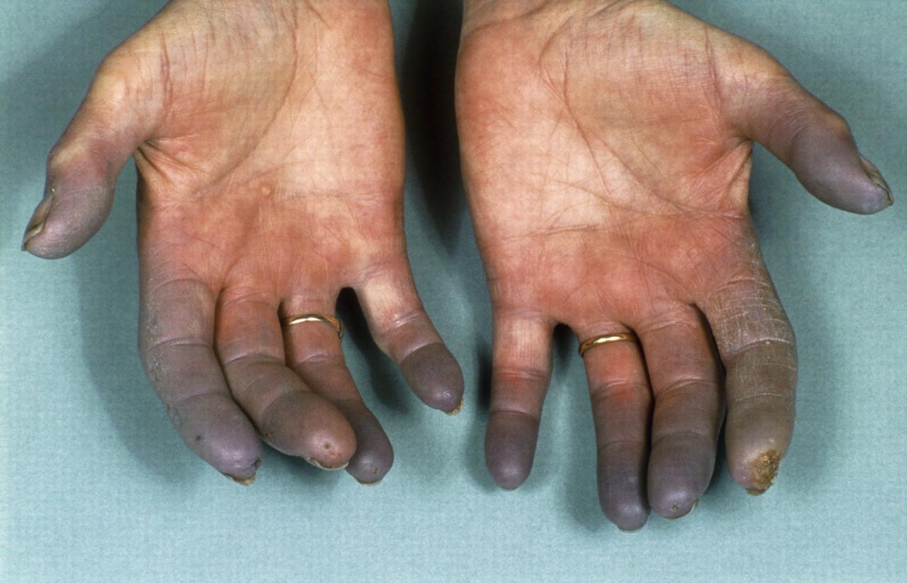 Buergers-disease2