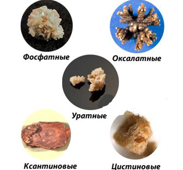 Vidyi-kamney