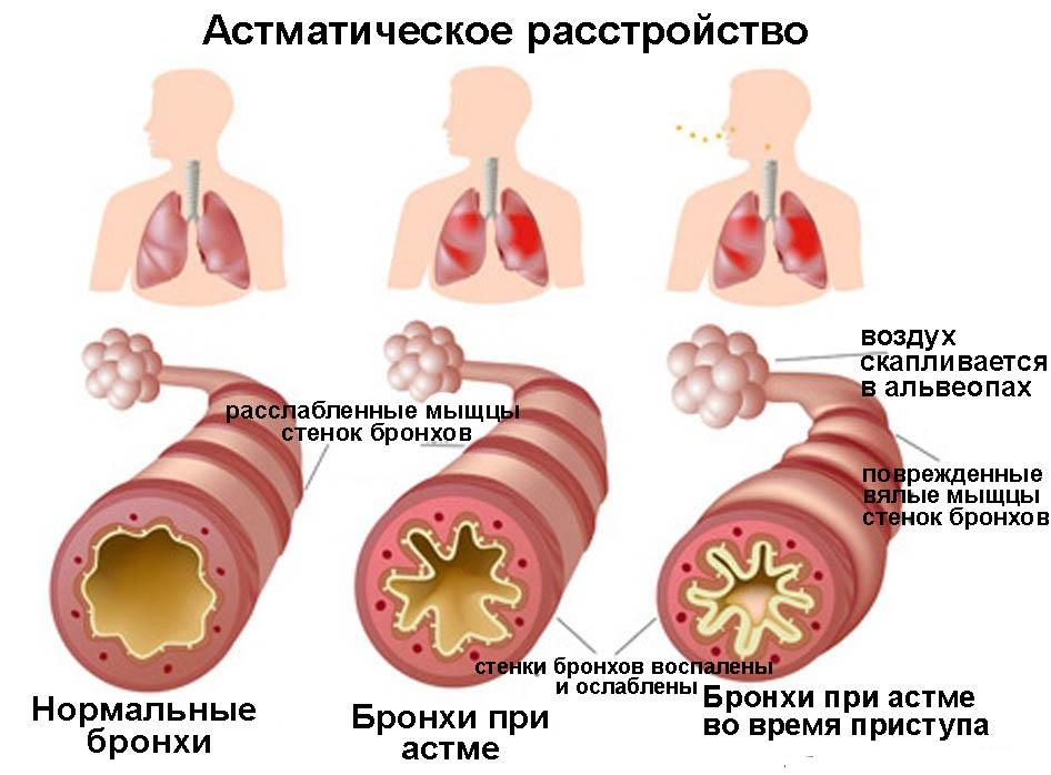 astmaticheskoe-rasstroistvo