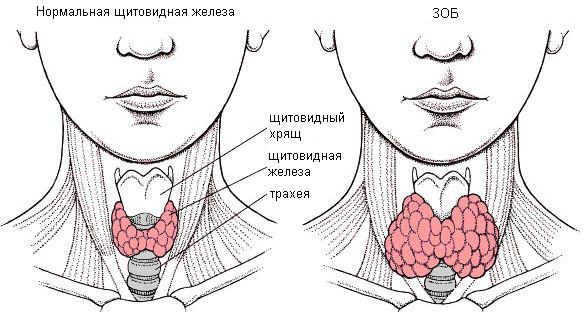 endemicheskij-zob