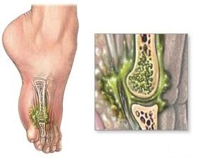 Причины остеомиелита