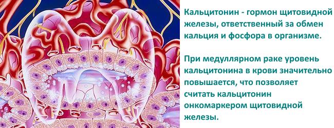 medullyarnaya-karcinoma-1