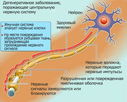 склероза