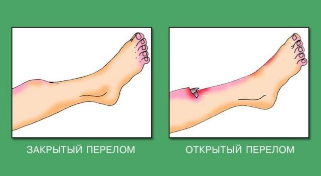 vid-perelomov