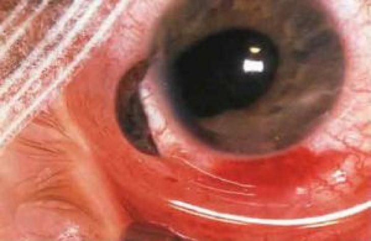 тобой рада симпатическая офтальмия фото племени сельва едят