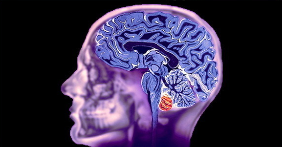 Показания к проведению МРТ