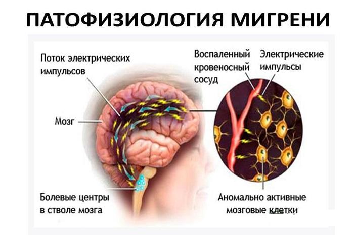 Patofiziologija-migreni