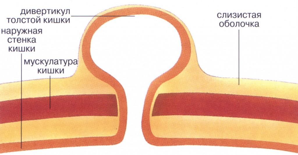 Причины и механизм развития дивертикулярной болезни толстой кишки