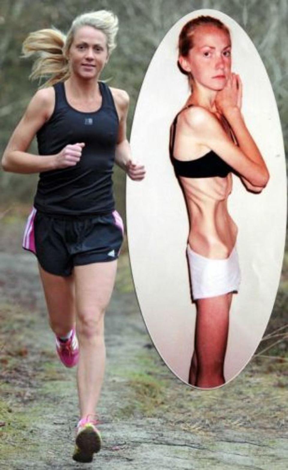 Болезнь от сильного похудения