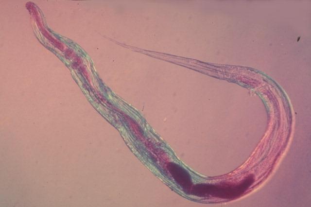 Заражение энтеробиозом острицы чаще всего возможно через что: источники заболевания