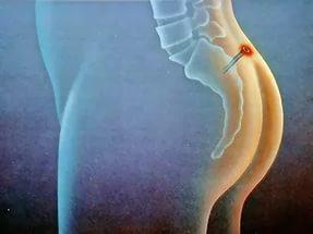 Лечение эпителиального копчикового хода