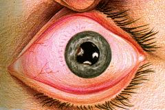 Симптомы иридоциклита