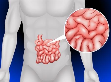 Синдром мальабсорбции у взрослых: причины, симптомы, лечение