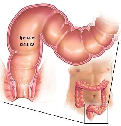 Анатомическое строение прямой кишки