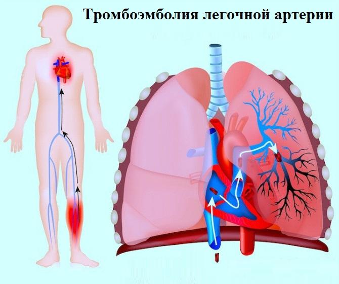 Тромбоэмболия легочной артерии: симптомы и лечение